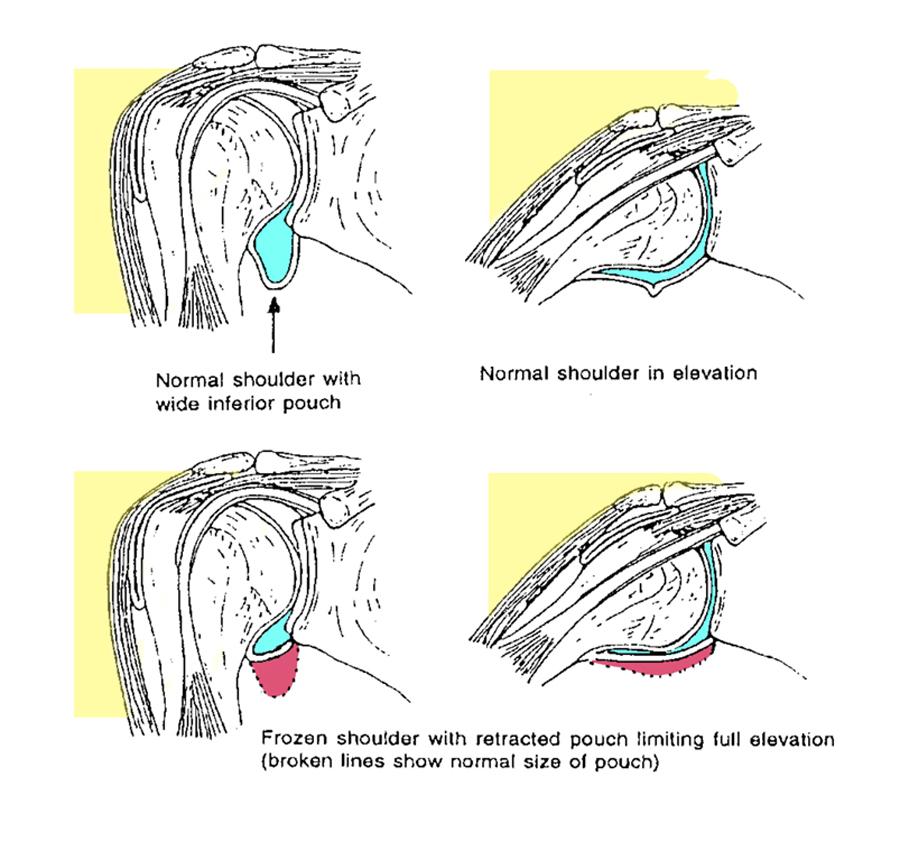 Frozen Shoulder diagram