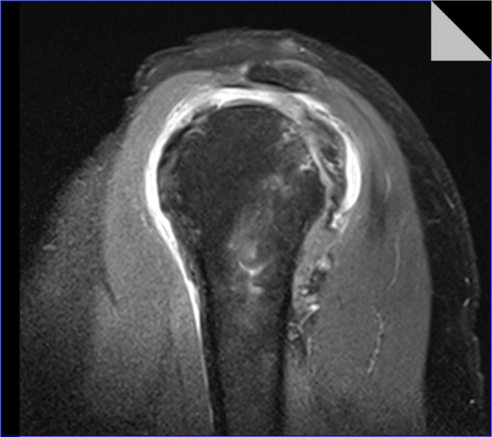 Shoulder Impingement Syndrome And Tears Of The Rotator